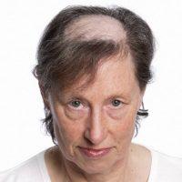 blog-perukidorothy-problem z przerzedzającymi włosami